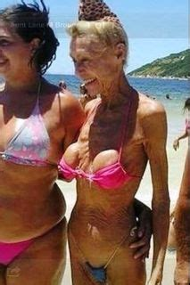 Am i too old for a breast augmentation plastic surgery jpg 213x320