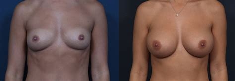 Reconstructive surgery for breast cancer patients dr jpg 999x347
