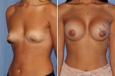 breast augmentation surgeon orange county jpg 1200x798