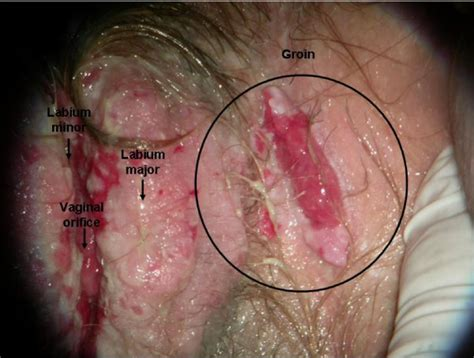 Vulvar lesions symptoms, diagnosis, treatments and causes jpg 600x454